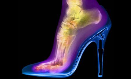 Röntgen: 10 obyčajných vecí, ktoré RTG žiarenie ukazuje v úplne inom svetle
